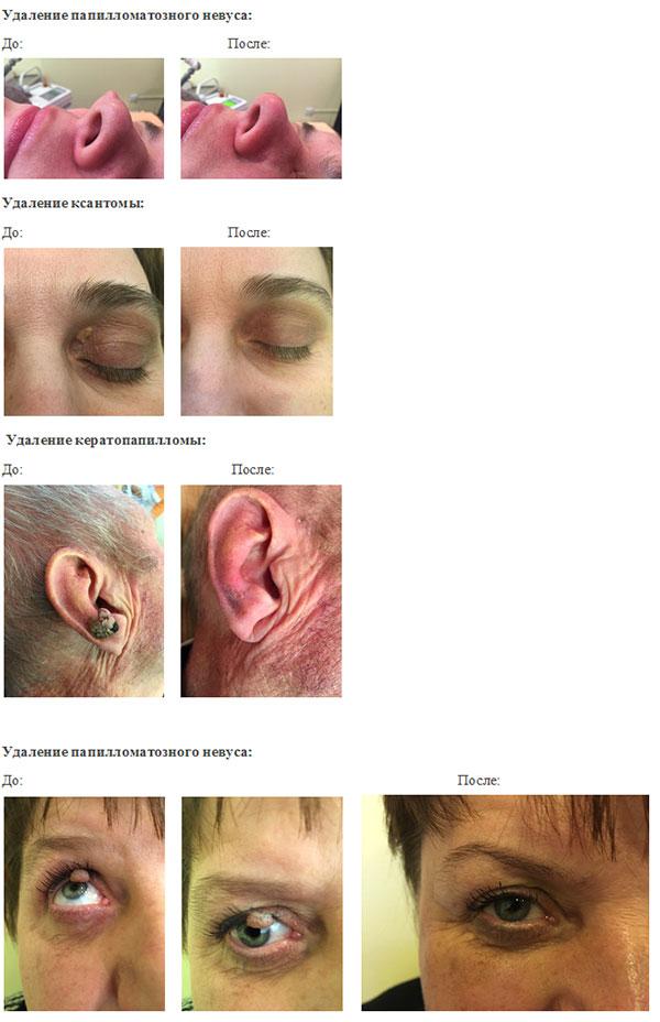 Методы удаления родинок на лице