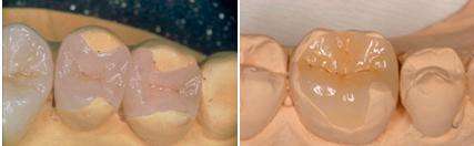 Как восстанавливают зуб если он полностью разрушен